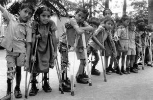 Young kids without legs using their crutches, looking at the camera. Due to polio disease