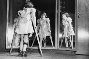 Young crippled girl looking at herself in the mirror with crutches due to polio disease